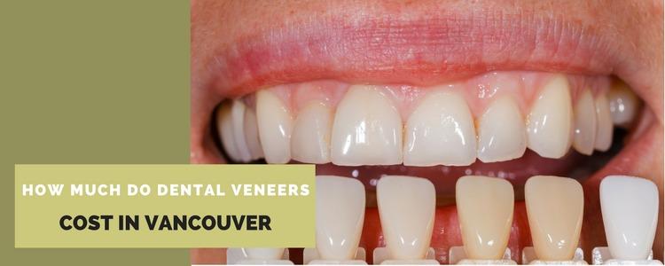 How do Veneers Work? - Wbccstar  Best Cosmetic Dentist in